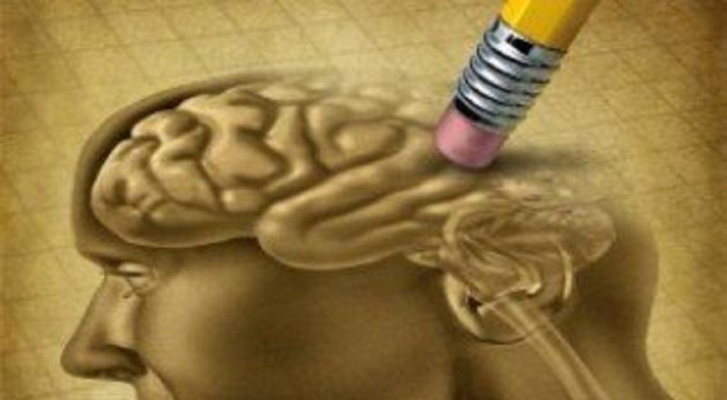 Leichter kognitiver Rückgang, Gehirn, Demenz